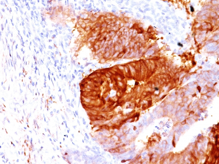 Formalin-fixed, paraffin-embedded Human Colon Carcinoma stained with  ALDH1A1 Monoclonal Antibody (ALDH1A1/1381).