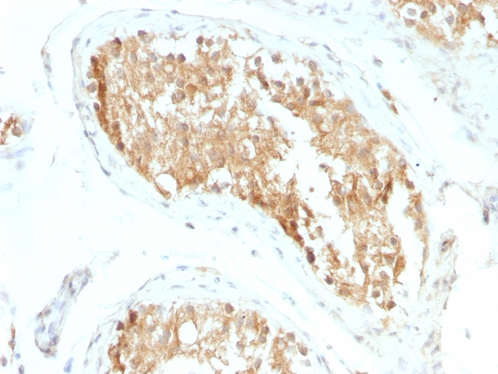 Formalin-fixed, paraffin-embedded Human Testicular Carcinoma stained with  ALDH1A1 Monoclonal Antibody (ALDH1A1/1381).