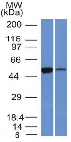 Western Blot of K562 and Lung Lysate using ALDH1A1 Monoclonal Antibody (ALDH1A1/1381).