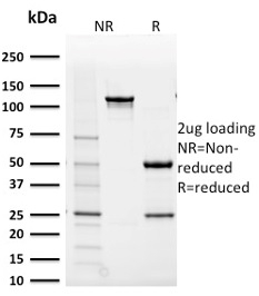 SDS-PAGE Analysis Purified AKR1B1 Mouse Monoclonal Antibody (CPTC-AKR1B1-2). Confirmation of Purity and Integrity of Antibody.