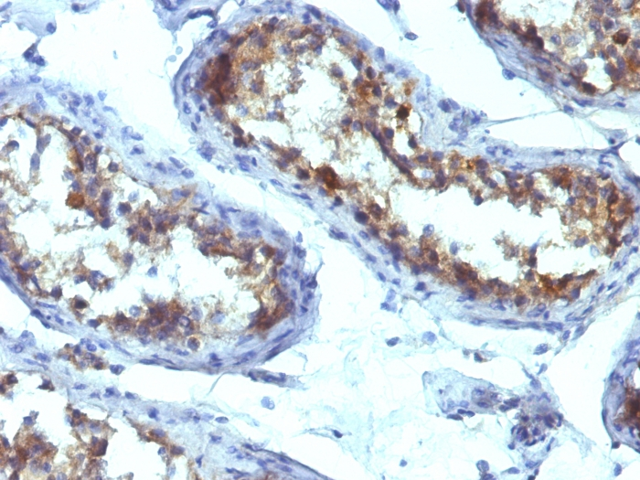 Formalin-fixed, paraffin-embedded human Testicular Carcinoma stained with  Alkaline Phosphatase Mouse Monoclonal Antibody (ALPL/597).