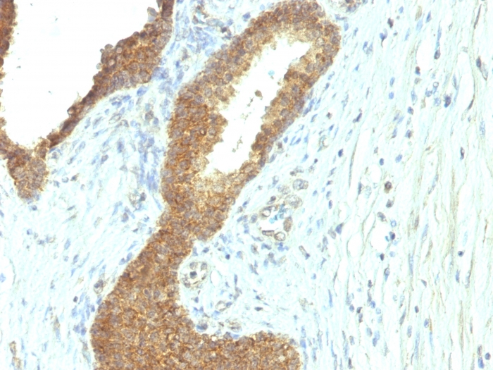 Formalin-fixed, paraffin-embedded human Colon Carcinoma stained with  Alkaline Phosphatase Mouse Monoclonal Antibody (ALPL/597).