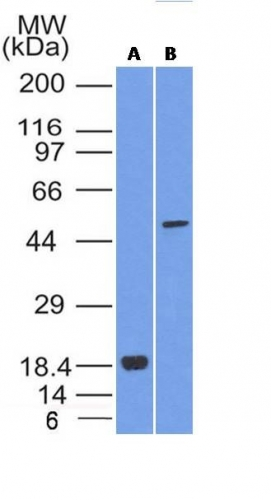 Western blot analysis of SOX10 (A) Recombinant protein; (B) A375 Cell lysate using SOX10 MAb (SOX10/1074).