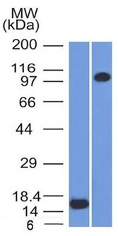 Western Blot Analysis (A) Recombinant Protein (B) THP1 Cell lysate Using Thrombomodulin/CD141 Monoclonal Antibody (THBD/1591).