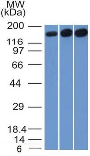 Western Blot of HepG2, HeLa and 3T3 Cell Lysate using Topo II alpha, Monoclonal Antibody (TOP2A/1361).