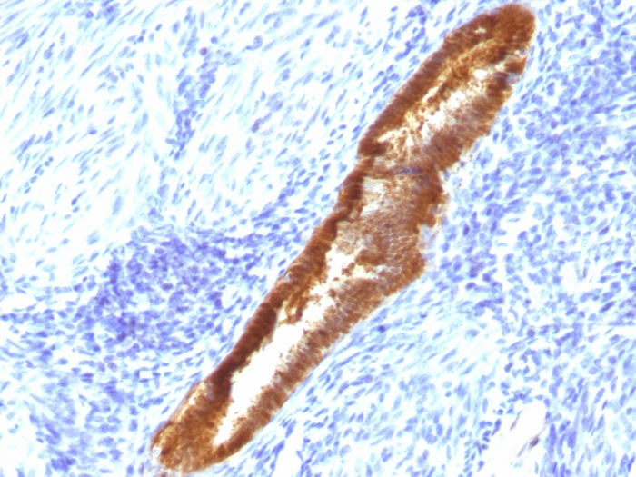 Formalin-fixed, paraffin-embedded human Endometrium stained with  ASRGL1 Monoclonal Antibody (CRASH/1289).