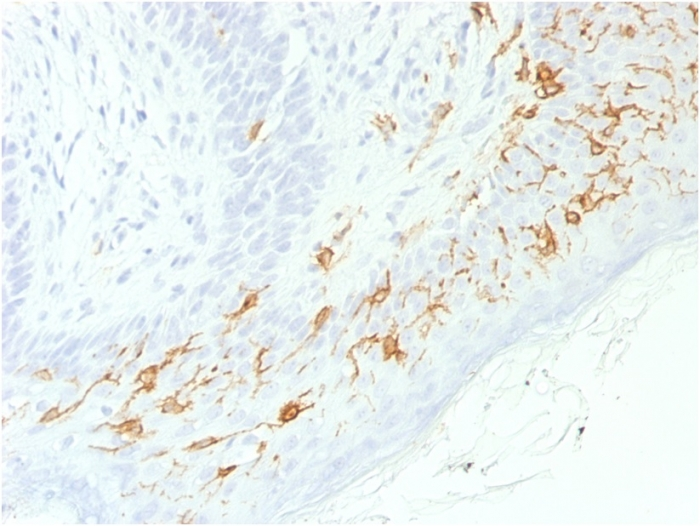 Formalin-fixed, paraffin-embedded human Skin stained with  CD1a Recombinant Rabbit Monoclonal Antibody (C1A/1506R).